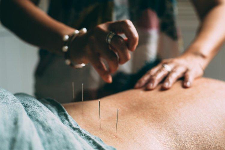 acupuncture in cronulla